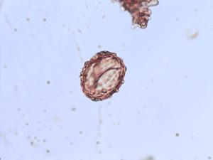 Pollen from the plant Genus Athyrium.