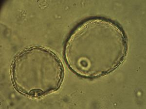 Pollen from the plant Genus Spartina.