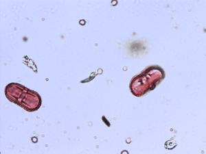 Pollen from the plant Genus Conopodium.