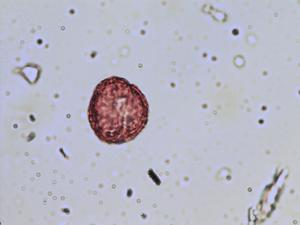 Pollen from the plant Species Ranunculus tripartitus.