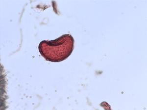 Pollen from the plant Species Athyrium filix-femina.