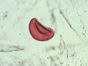 Pollen from the plant Genus Thelypteris.