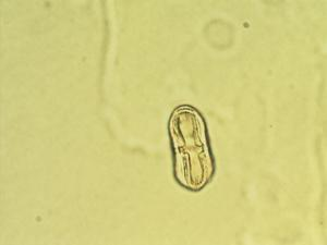 Pollen from the plant Genus Conioselinum.