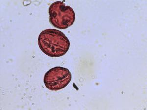 Pollen from the plant Genus Malus.