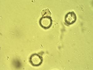 Pollen from the plant Species Acalypha ornata.
