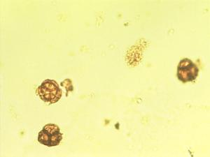 Pollen from the plant Genus Erica.