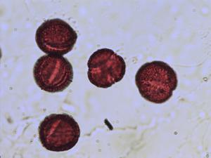 Pollen from the plant Species Ranunculus auricomus.