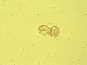 Pollen from the plant Genus Dobera.