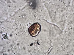 Pollen from the plant Species Claytonia perfoliata.