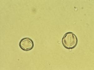 Pollen from the plant Species Linaria acutiloba.