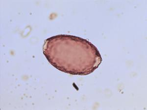 Pollen from the plant Genus Colchicum.