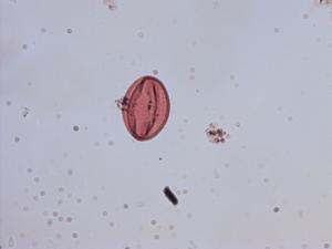 Pollen from the plant Species Globularia alypum.