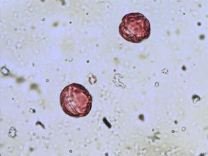 Pollen from the plant Genus Echinospartum.