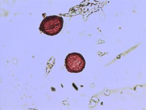 Pollen from the plant Species Saxifraga paniculata.