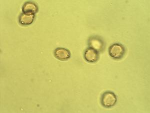Pollen from the plant Genus Lasianthera.