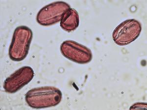 Pollen from the plant Genus Onobrychis.