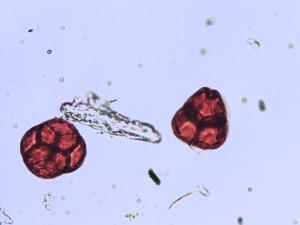 Pollen from the plant Genus Ledum.