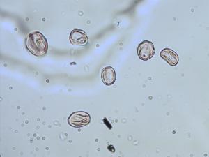 Pollen from the plant Genus Tibouchina.