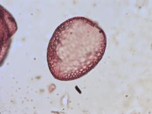 Pollen from the plant Genus Anthericum.