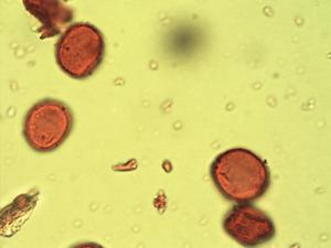 Pollen from the plant Genus Celtis.