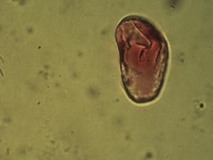 Pollen from the plant Species Carex caryophyllea.