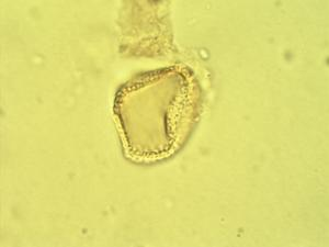Pollen from the plant Genus Rhaphiostylis.
