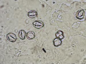 Pollen from the plant Species Sedum roseum.