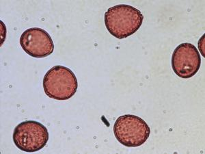Pollen from the plant Genus Coriaria.