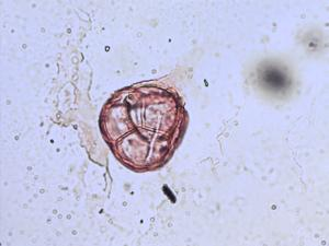 Pollen from the plant Species Vaccinium oxycoccos.