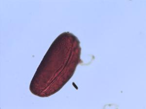 Pollen from the plant Genus Bomarea.