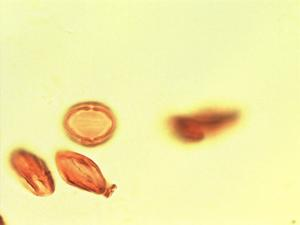 Pollen from the plant Genus Dinophora.