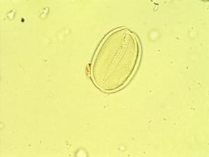 Pollen from the plant Genus Stylosanthes.