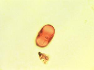 Pollen from the plant Genus Chrysophyllum.