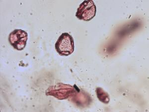 Pollen from the plant Genus Stuckenia.
