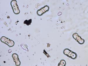 Pollen from the plant Genus Anthriscus.