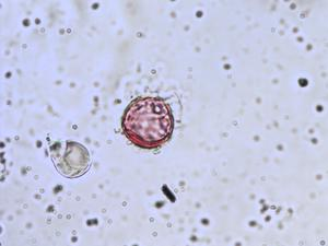 Pollen from the plant Genus Primula.