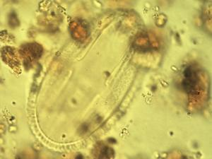 Pollen from the plant Genus Hypoestes.