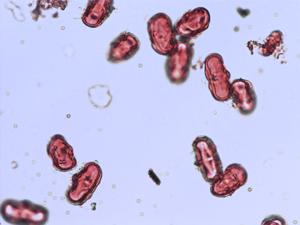 Pollen from the plant Genus Aethusa.
