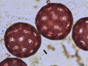 Pollen from the plant Genus Agrostemma.