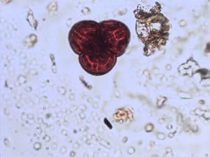 Pollen from the plant Species Erica umbellata.