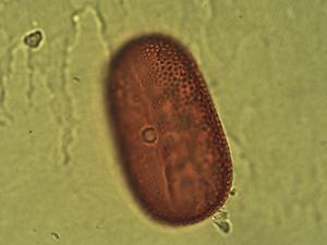 Pollen from the plant Species Justicia galapagana.