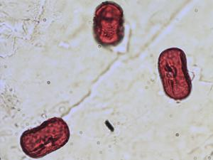 Pollen from the plant Species Vicia sepium.
