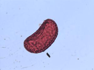 Pollen from the plant Species Pleopeltis mexicana.