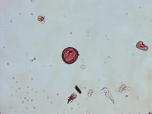 Pollen from the plant Genus Clethra.