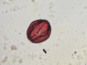 Pollen from the plant Genus Menyanthes.