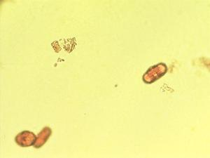 Pollen from the plant Genus Todaroa.