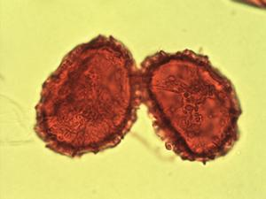 Pollen from the plant Genus Hypolepis.