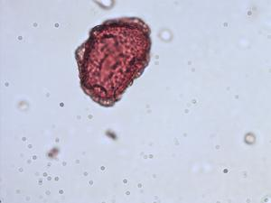 Pollen from the plant Species Dryopteris dilatata.