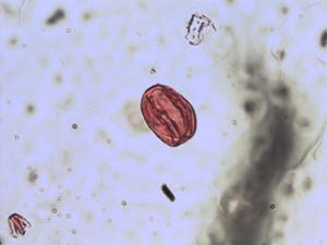 Pollen from the plant Species Dorycnium hirsutum.