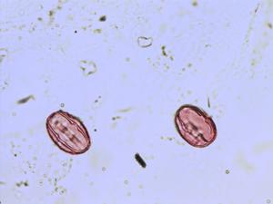 Pollen from the plant Genus Oxytropis.